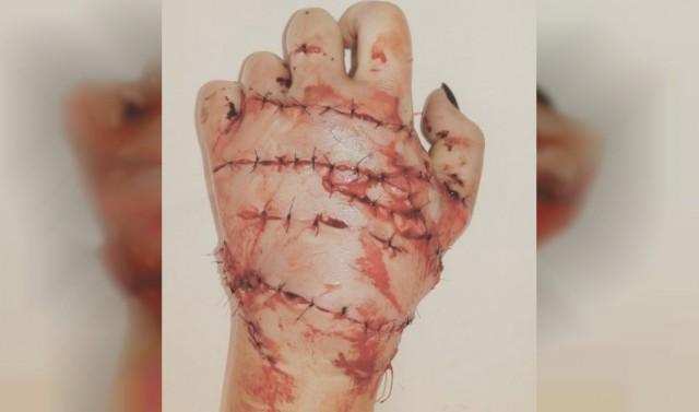 Почему полиция не смогла защитить жительницу Серпухова, которой ревнивый муж отрубил обе руки!?