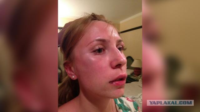 Туристку из России избили в отеле Шарм-эль-Шейха
