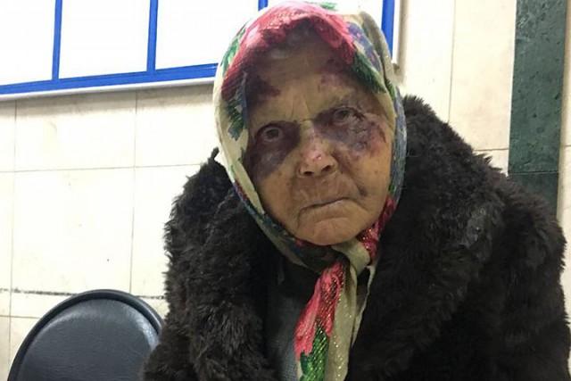 Избитую до полусмерти старушку все принимали за бомжа. В итоге женщина чуть не замерзла под забором в Домодедово