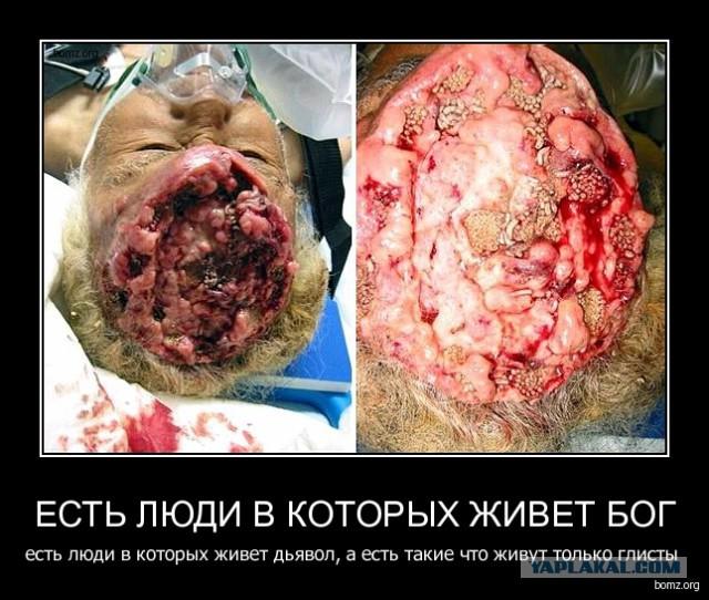 паразиты в мозгу человека фото