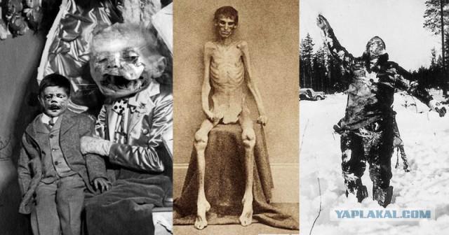 Несколько жутких исторических фотографий