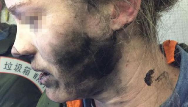 У пассажирки во время полета на голове взорвались наушники