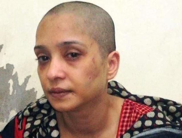 Мужчина избил жену и побрил ее налысо: она отказалась танцевать для его друзей