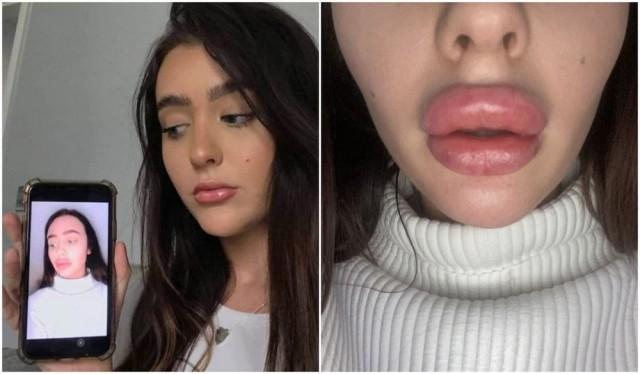 Глупенькая зачем-то хотела увеличить губы, но её изуродовали так, что пришлось прятать лицо даже от бойфренда