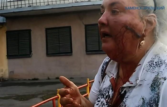 В Каменске-Уральском окровавленная женщина обвинила сотрудников полиции в избиении