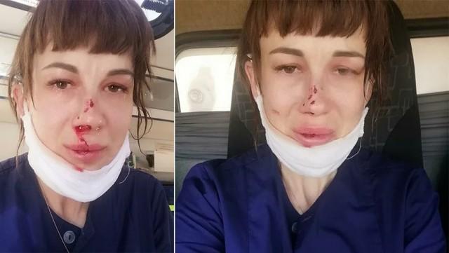 Фельдшера скорой помощи избилив городе Энгельсе Саратовской области.