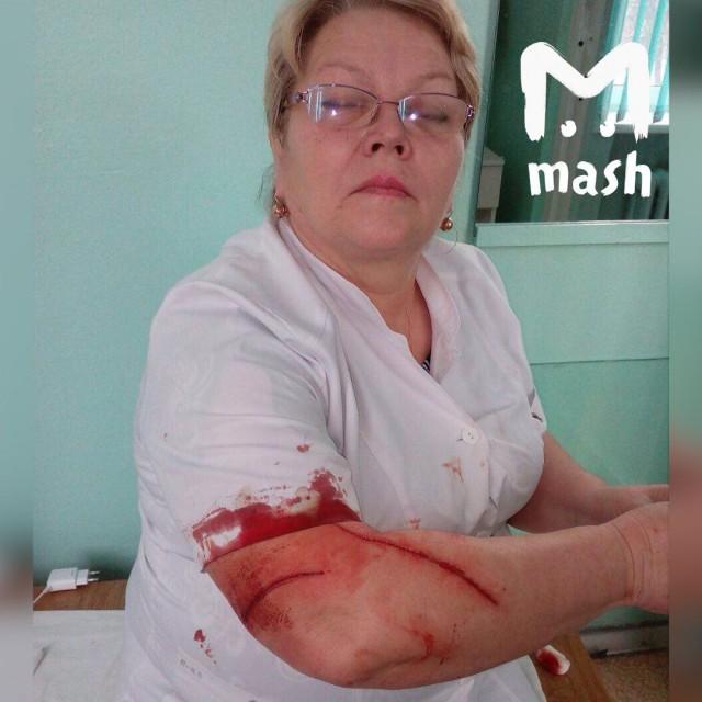 Пациентка избила врача в Башкирии