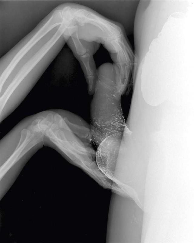 Член в пизде видео рентген, смотреть после русского вечера пошли ебаться