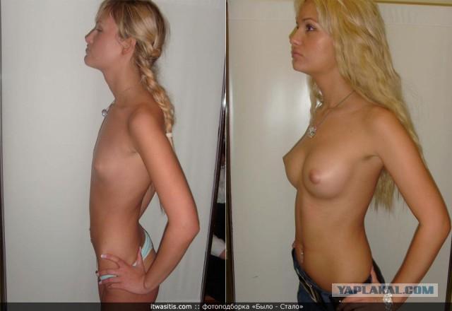 Увеличение груди с помощью народных рецептов от 700 болезней. увеличить гру