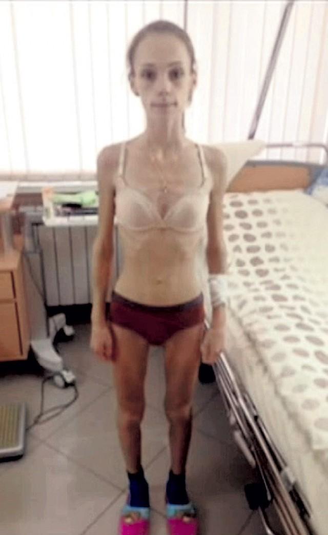 голые фото анорексия