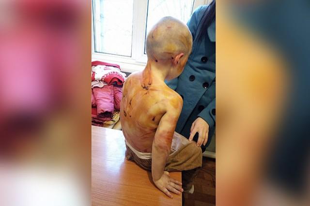 Отчим-гастарбайтер жестоко избил 4-летнюю девочку за то, что не смогла сосчитать до пяти