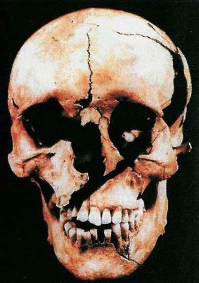 Павшие в бою. Битва при Таутоне. Мумии и скелеты.12