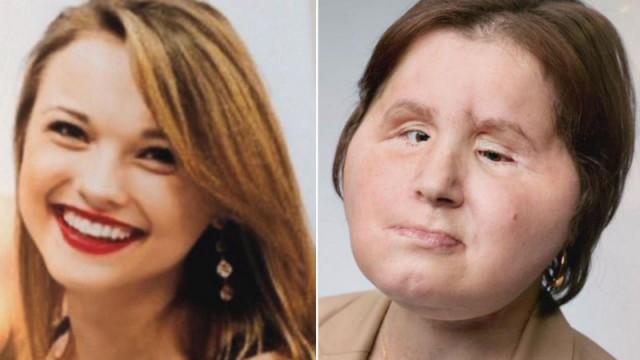 В свои 21 она является самой молодой женщиной, которой сделали пересадку лица.