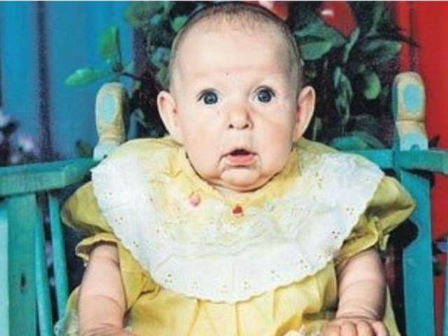 Отец покинул семью, увидев лицо новорожденной дочери. Но когда она выросла, случилось чудо!