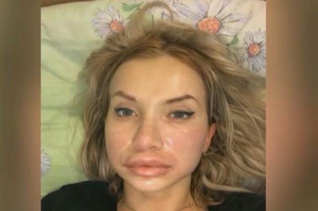 «Раздувало лицо, голову». Девушка попала в реанимацию после уколов у косметолога-самоучки