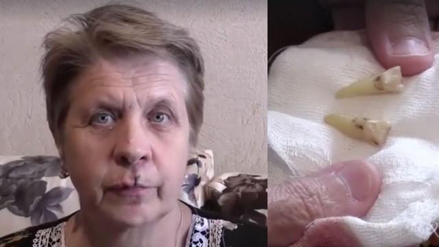 Пенсионерке выбили зубы в очереди к мощам Николая Чудотворца