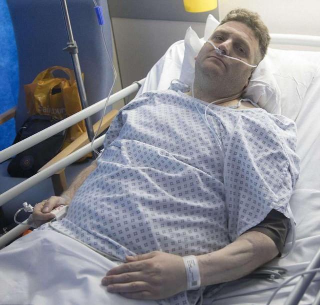 Британец с бионическим пенисом впал в кому после первого секса