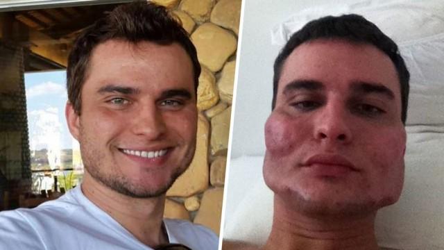 В Бразилии судят хирурга Уэсли Мураками, который изуродовал лица как минимум 40 пациентов