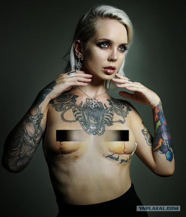 Пластика груди женщин