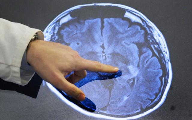 Биотехнологи получили разрешение на исследование обратимости смерти мозга