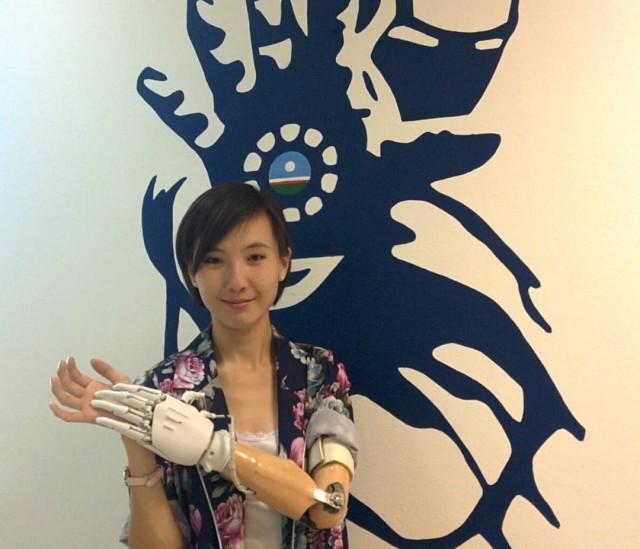 Якутяне сделали бионический протез руки, распечатанный на 3D-принтере