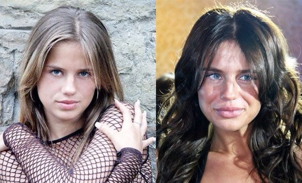 5 знаменитых женщин, растерявших свою красоту из-за пластики и нездорового образа жизни