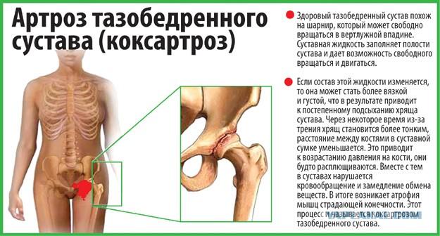 пластика пкс коленного сустава видео