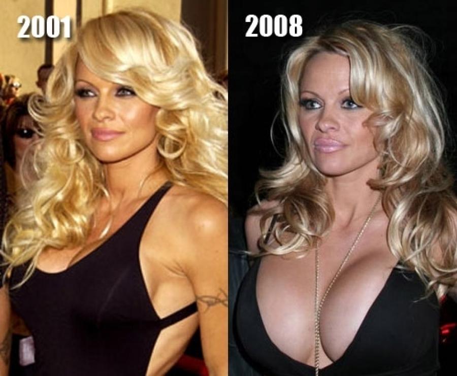 big-boob-plastic-surgery-topless-pics-of-virginia-madson