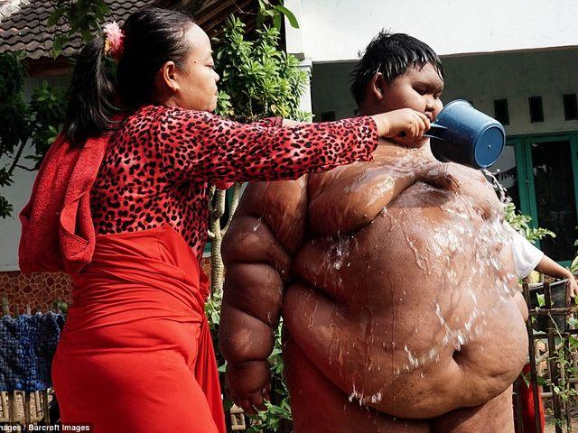 10-летнего мальчика весом 192 кг экстренно посадили на диету