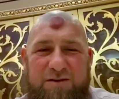 Стало известно о тяжелом состоянии Кадырова