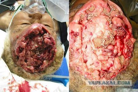 картинки трипофобия на теле человека