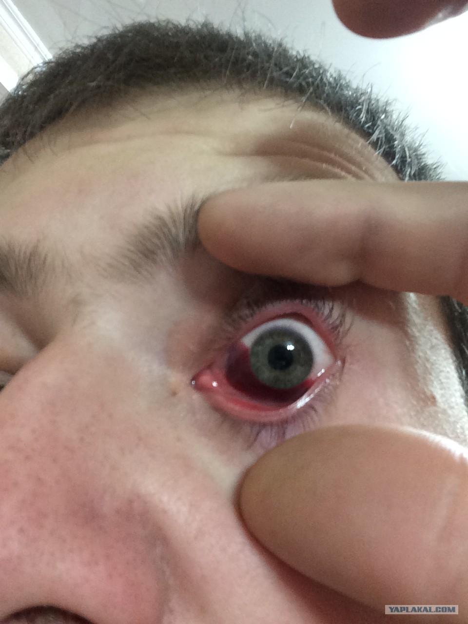 Пыль от болгарки попала в глаз не проходит неделю