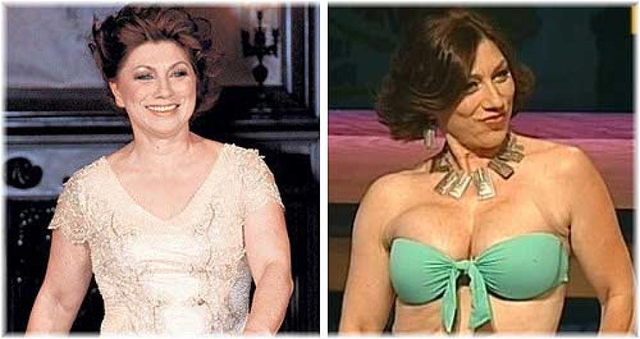актрисы российские фото до и после пластики