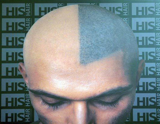 Татуировки на голове вместо волос