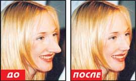 Почему Любовь Успенская выглядит моложе на 20 лет