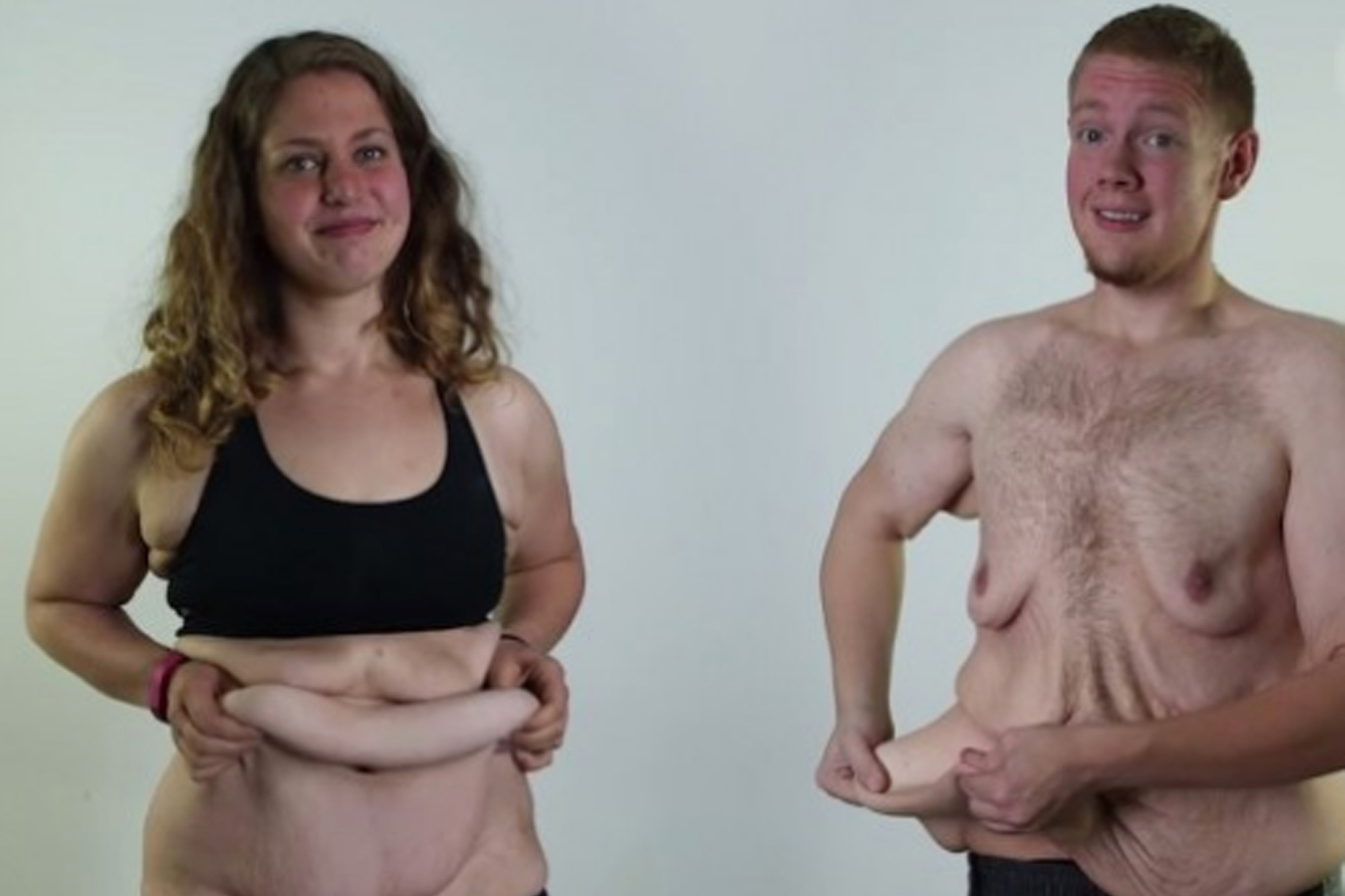 Болезни При Резком Похудении. Потеря веса