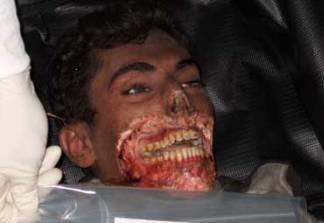 Последние улыбки перед смертью