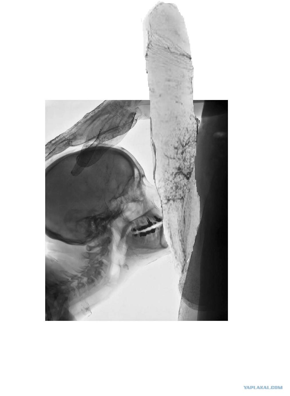 видео онлайн секс через рентген трансляции