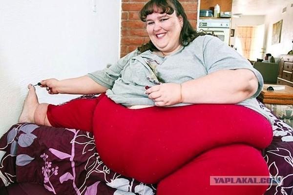 Бывшая анорексичка гордится новообретенными складками на животе
