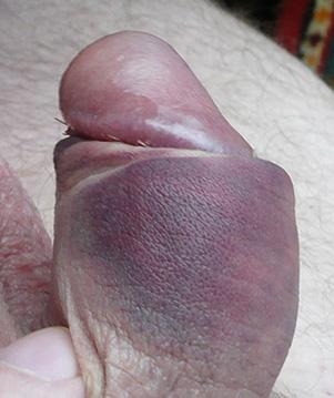 Убрать рубец от минета на головке пениса