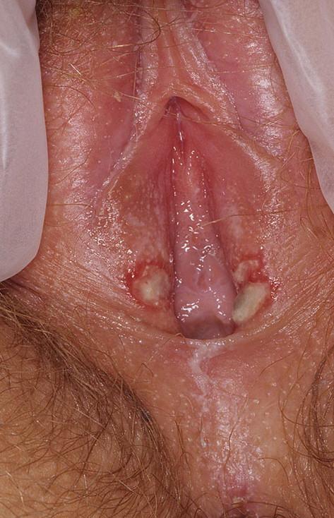 Ulcer on vulva, nude daughter dad sex