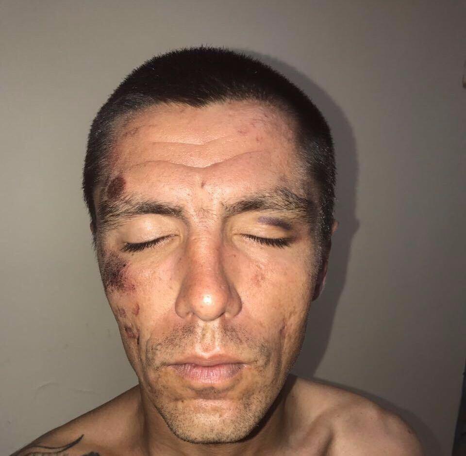 Избитое лицо картинка