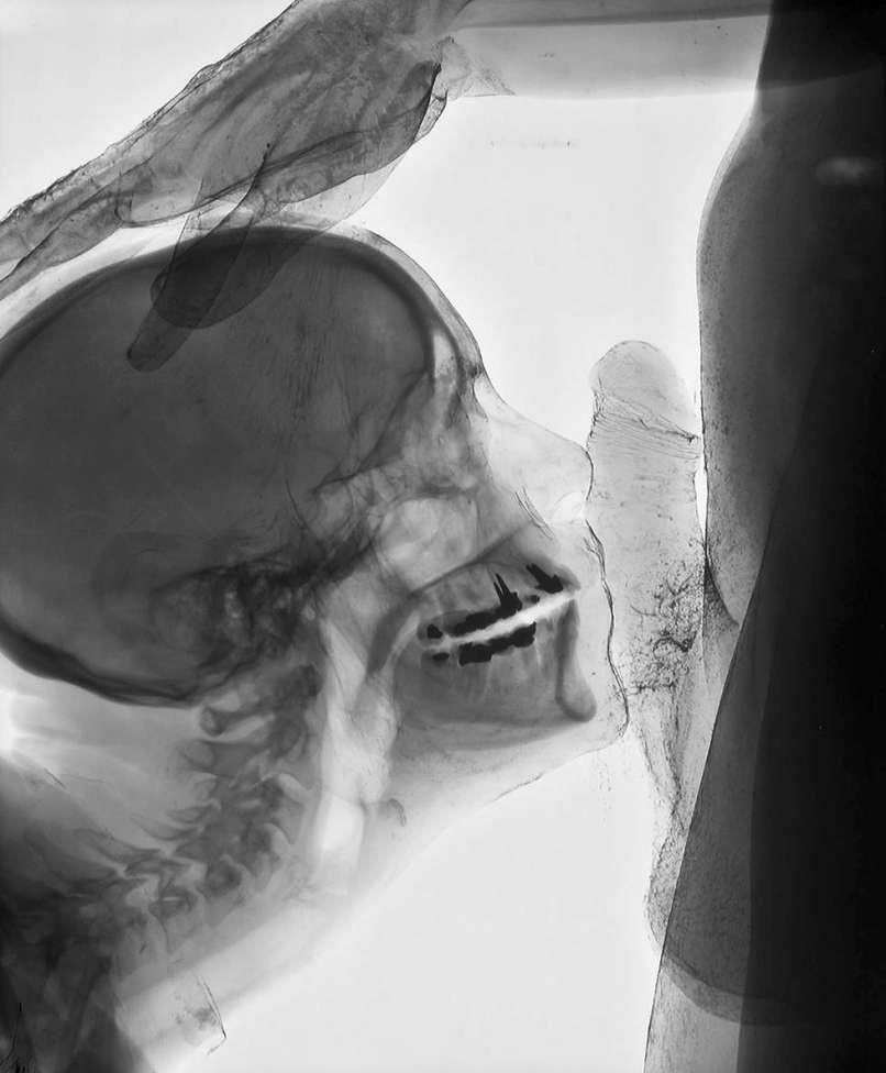 на фото анал рентген