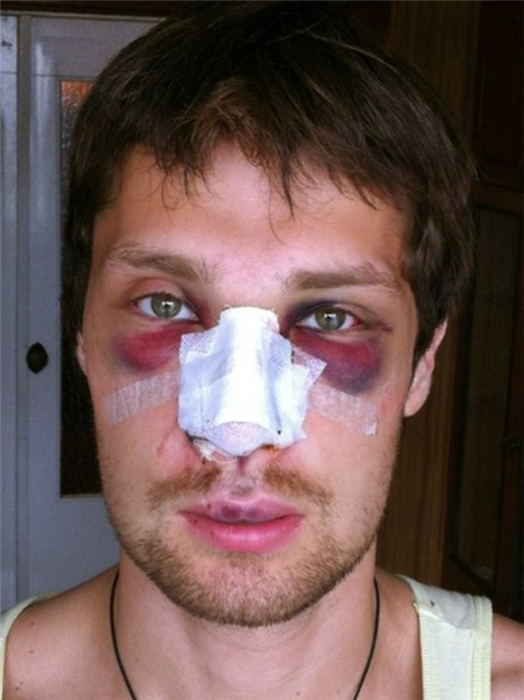 Болит голова после операции на нос