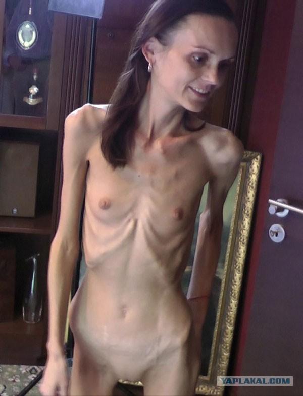 zhopi-porno-anoreksiya-molodie-golie-super-gigantskiy