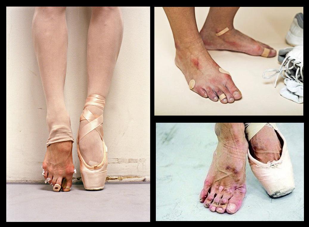 Vene varicoase la balerină