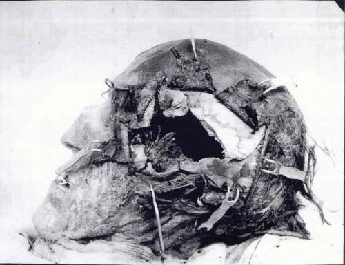 Картинки по запросу Голова короля Швеции Карла XII с дырой от пули
