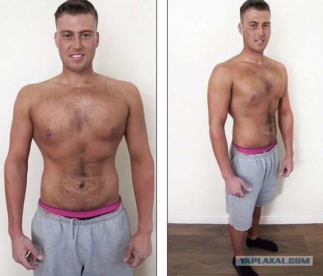 Сильно Похудел И Ослаб В Чем Причина. Причины похудения: 10 заболеваний, от которых теряют вес