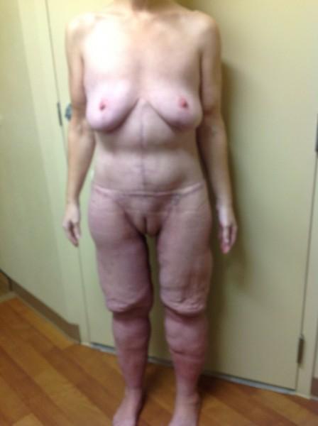 когда фото женщин после похудения голыми порно