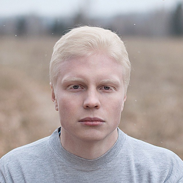 Реальные фото альбиносов